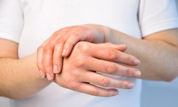 If your hands are consistently dry and you're experiencing cold or numb extremities, brittle nails, or fatigue, consider ways to boost circulation.(cunaplus/Shutterstock)