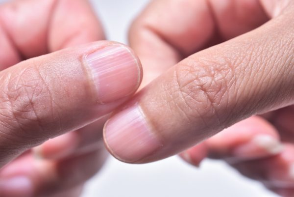 10 Fingernail Symptoms That Can Help Detect Health Conditions—If You