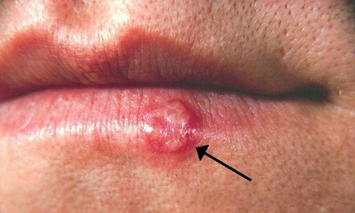 An undated photo of a cold sore. (Centers for Disease Control and Prevention)