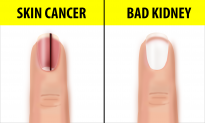 10 Fingernail Symptoms That Can Help Detect Health Conditions—If You See Black Lines, Go See a Doctor