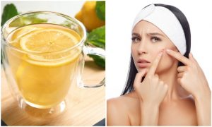 13 Problems That Can Be Treated by a Glass of Lemon Water Instead of Pills