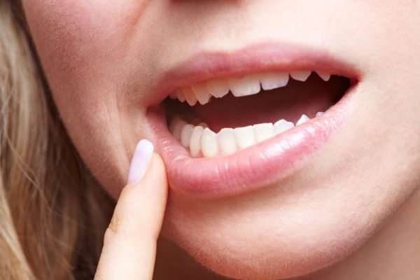 10 Things Your Lips Say About Your Health—Tingling Lips May