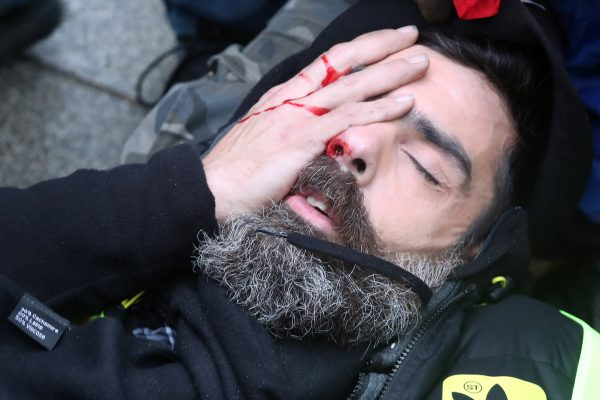 Jerome Rodrigues lies on the street with a wounded eye