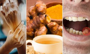 Serious Heat: 8 Ailments Ginger Tea Can Help Remedy–Do You Suffer From Arthritis or Tooth Decay?