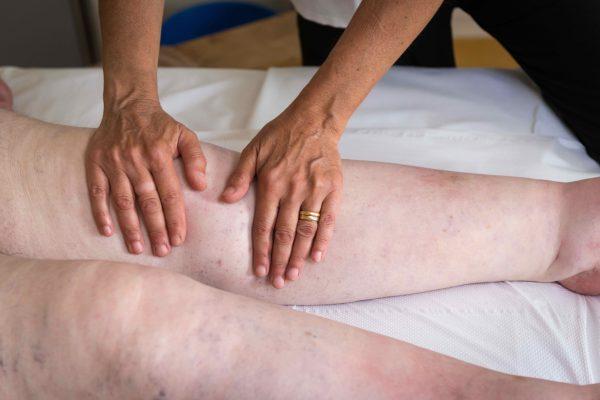 Swelling lower legs