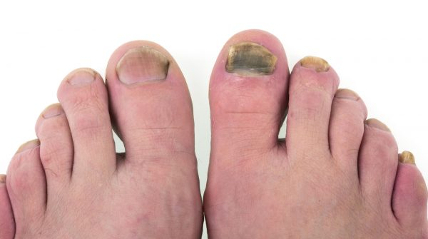 Fungus on the big toe