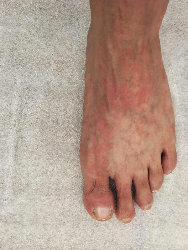 Red foot of patient suffering from Systemic Lupus Erythematosus