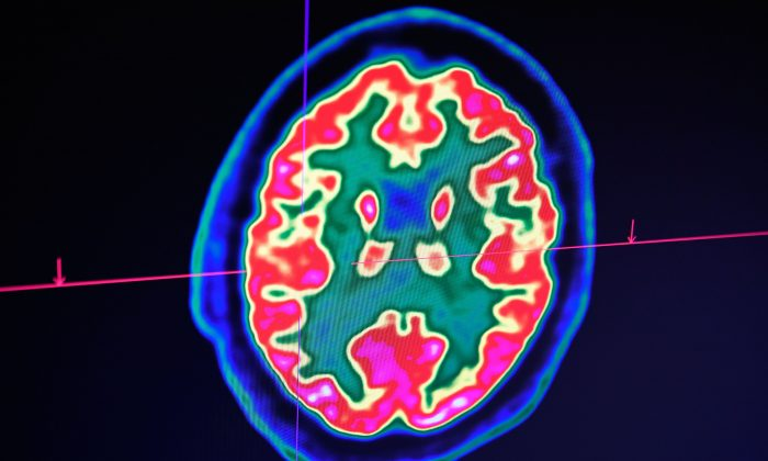 In this file image, a picture of a human brain taken by a positron emission tomography scanner, also called PET scan, is seen on a screen at the Regional and University Hospital Center of Brest, western France Jan. 9, 2019. (Fred TANNEAU / AFP/Getty Images)
