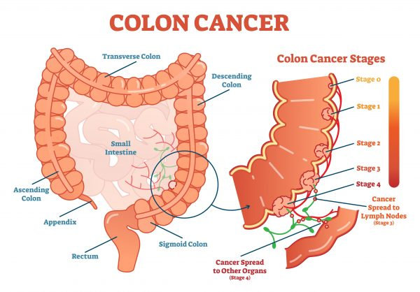 Awesome 9 Signs That May Indicate Colon Cancerdoes Your Belly Feel Ibusinesslaw Wood Chair Design Ideas Ibusinesslaworg