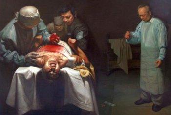 'Organ Crimes.'