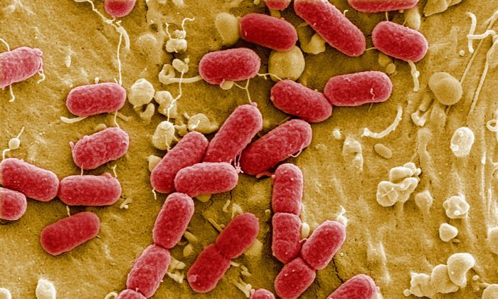 An EHEC bacteria is visible in Berlin, Germany on May 30, 2011. (Courtesay Manfred Rohde, Helmholtz-Zentrum fuer Infektionsforschung (HZI)/Getty Images)
