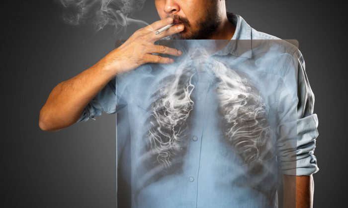 Smoking puts yourself at risk for lung cancer and other conditions. (Krunja/Shutterstock)