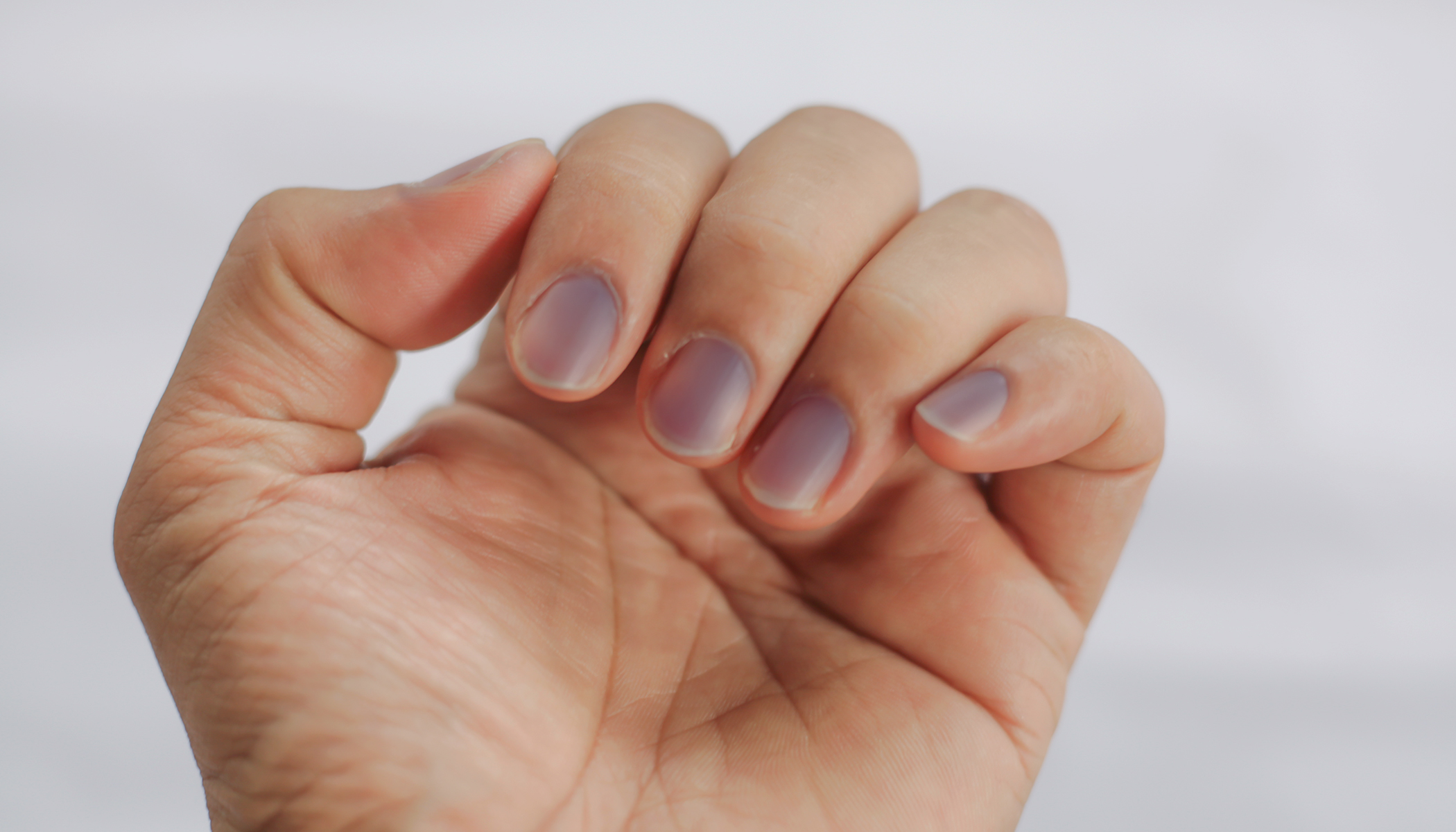10 Fingernail Symptoms That Can Help Detect Health