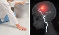 8 Warning Signs That a Stroke Is Coming On–Look for Little Things, Like Sudden Loss of Balance