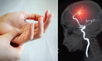 5 Serious Health Conditions Linked to NUMB HANDS Telling You to See Your Doctor