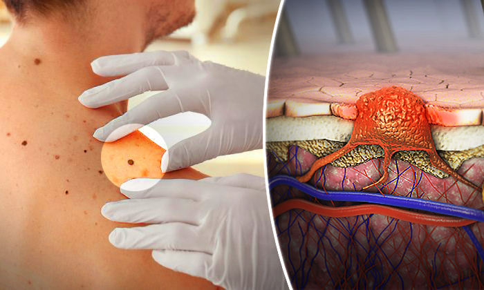 7 Signs That May Indicate Melanoma: The Most Serious Type of Skin Cancer in the World