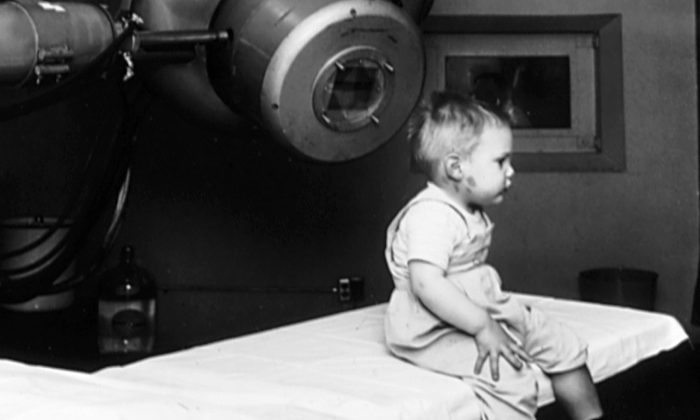 Gordon Isaacs, the first patient treated with the linear accelerator (radiation therapy), for retinoblastoma in 1957. (Public Domain)