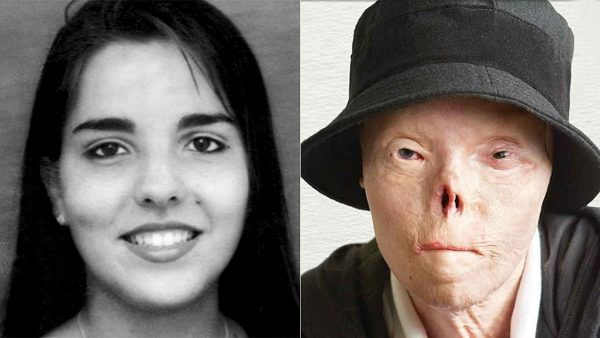 Jacqueline Saburido before and after the accident
