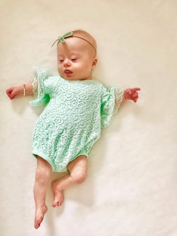 Pregnant Mom Chose to Keep Baby With Down Syndrome, Says