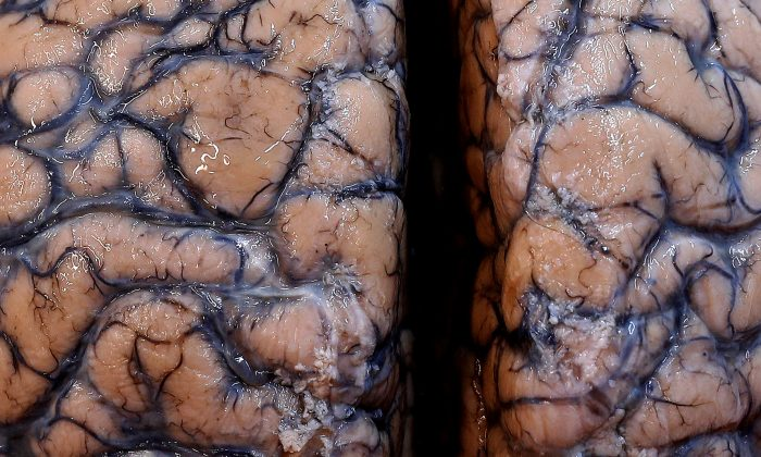 A human brain is seen at the psychiatric hospital in Duffel, Belgium, on July 19, 2017. (Yves Herman/Reuters)