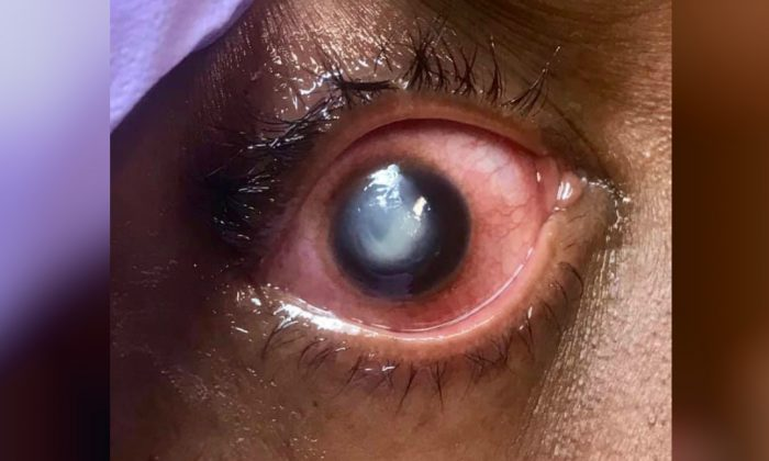 The eye of a patient suffering from pseudomonas infection of the cornea. (Vita Eye Clinic)