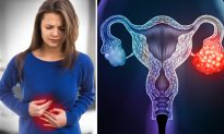 5 Signs That Could Mean Ovarian Cancer–Early Stages Are Hard to Detect, Here's How