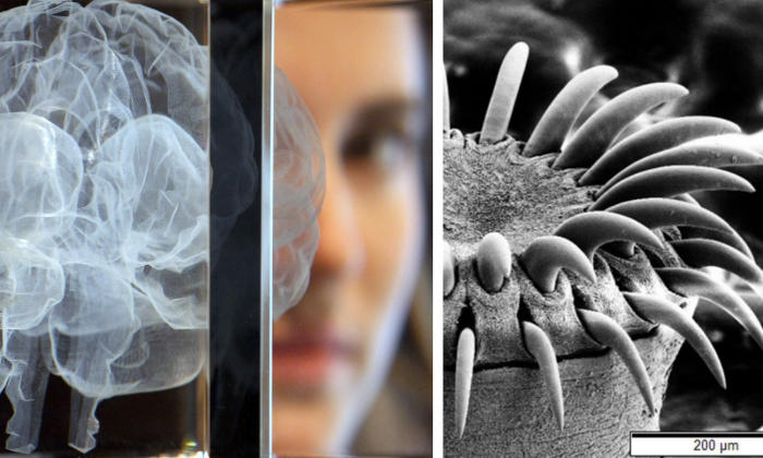 "R: A woman poses behind an artwork in the shape of a brain on March 27, 2012 in London, England. (Dan Kitwood/Getty Images) L: An electron microscope image of a tapeworm's head. (""Tapeworm SEM"" by Mogana Das Murtey and Patchamuthu Ramasamy (CC BY-SA 3.0 ept.ms/2Bw5evC)"