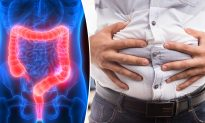 Man Has Trouble Going 'Number 2' for 22 Years–Until Doctors Remove 30 Pounds of Poo From His Gut