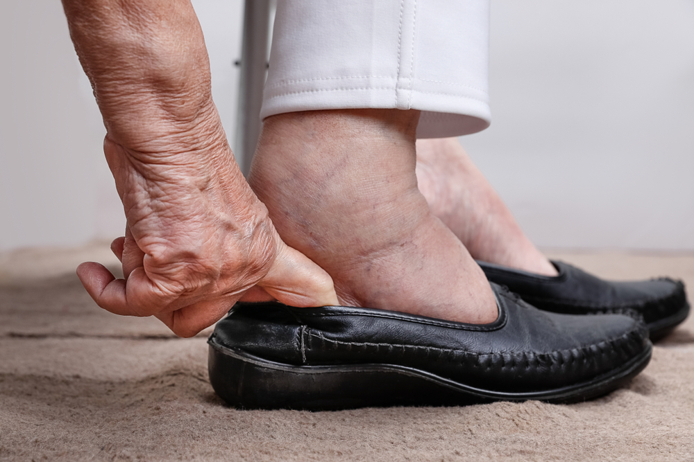 5 Scary Symptoms Related to Swollen Feet–# 5 Can Lead to Heart Failure