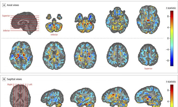 This image provided by the American Medical Association shows the amount of differences between brain scans of patients, in July 2019. (American Medical Association via AP)