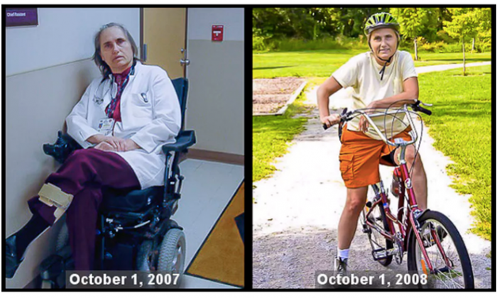 Terry Wahls before and after she changed her diet.