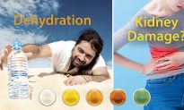 What Does Urine Color Say About Your Health?–5 Hues of Urine and What They Mean (Yes, Green Urine Exists)