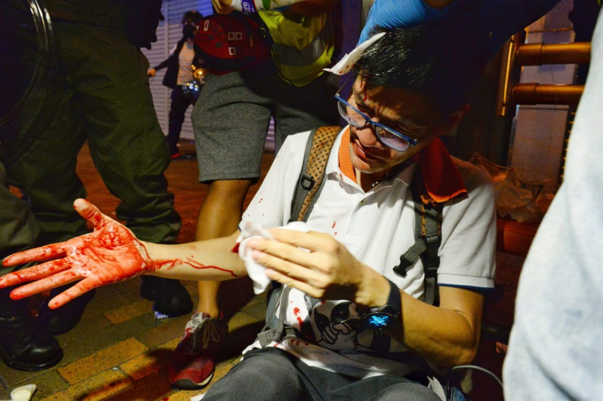 protester injured hong kong july 28