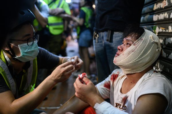 HONG-KONG-CHINA-Protests
