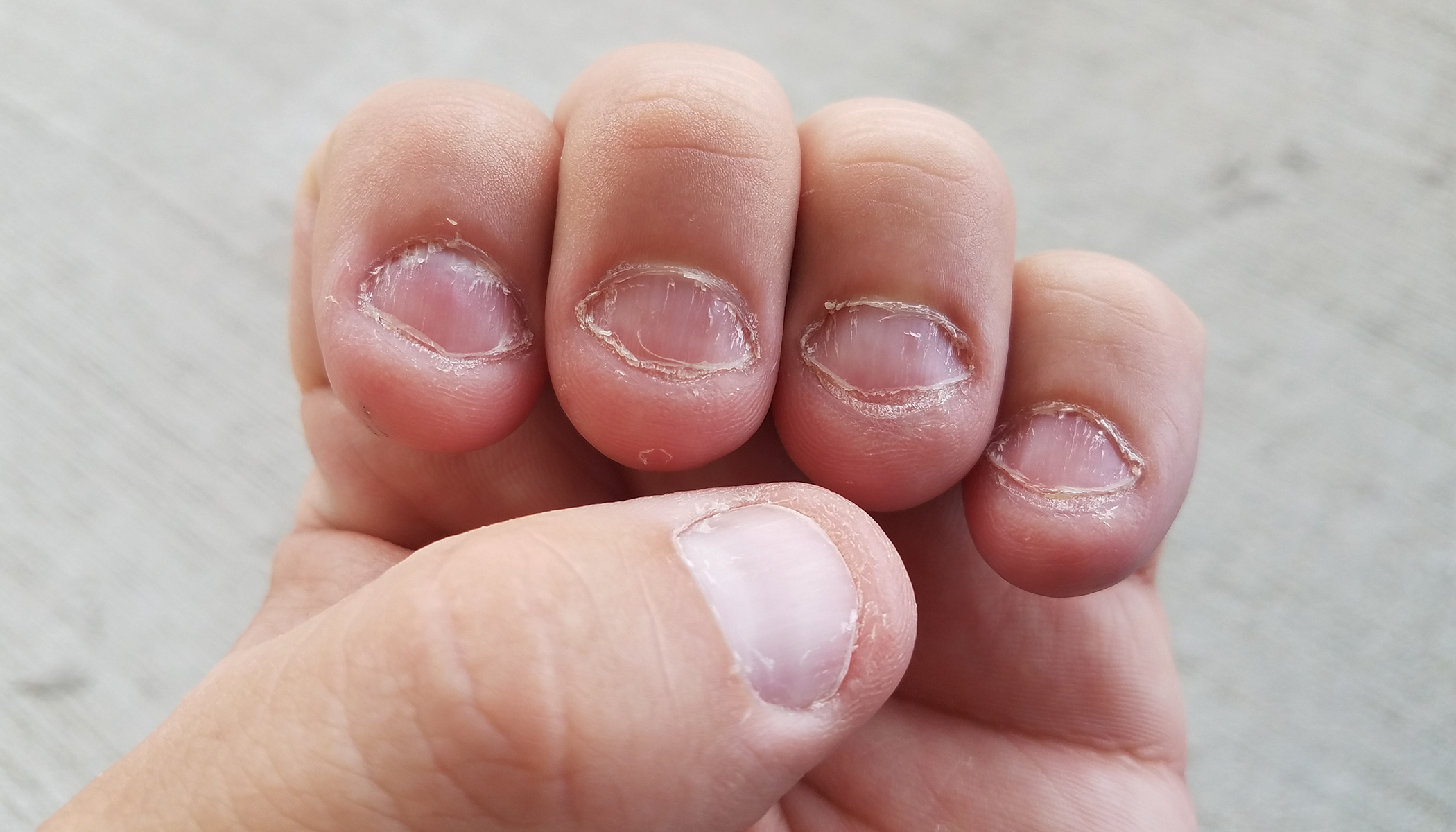 What Nail Biting Says About Your Personality