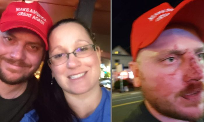 Milwaukee residents Luke and Leah Lenzner say they were attacked in Portland, Ore., on Aug. 24, 2019. (Leah Lenzner/Facebook)