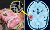 Teen Has Seizures and Dies, Then Doctors Find Tapeworm Eggs in His Body