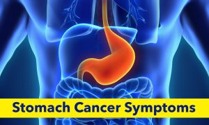 8 Warning Signs of Stomach Cancer That You Shouldn't Ignore