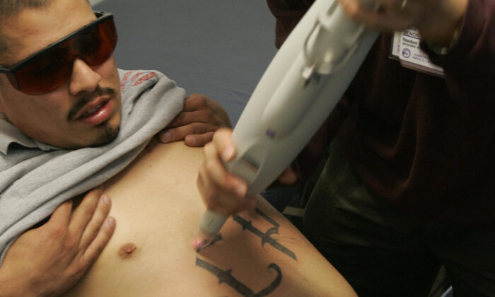 A doctor uses a laser machine to begin tattoo removal on a former gang member at a tattoo removal clinic in East Los Angeles on March 23, 2005. (Robyn Beck/AFP/Getty Images)