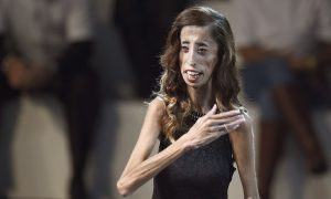 Girl Silenced Haters With Moving Message After Being Labeled 'World's Ugliest Woman'