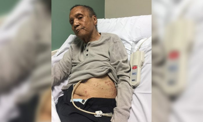 Air force veteran Joel Marrable pictured with ant bites on his body at a VA center in Georgia. (Courtesy Laquna Ross/CNN)