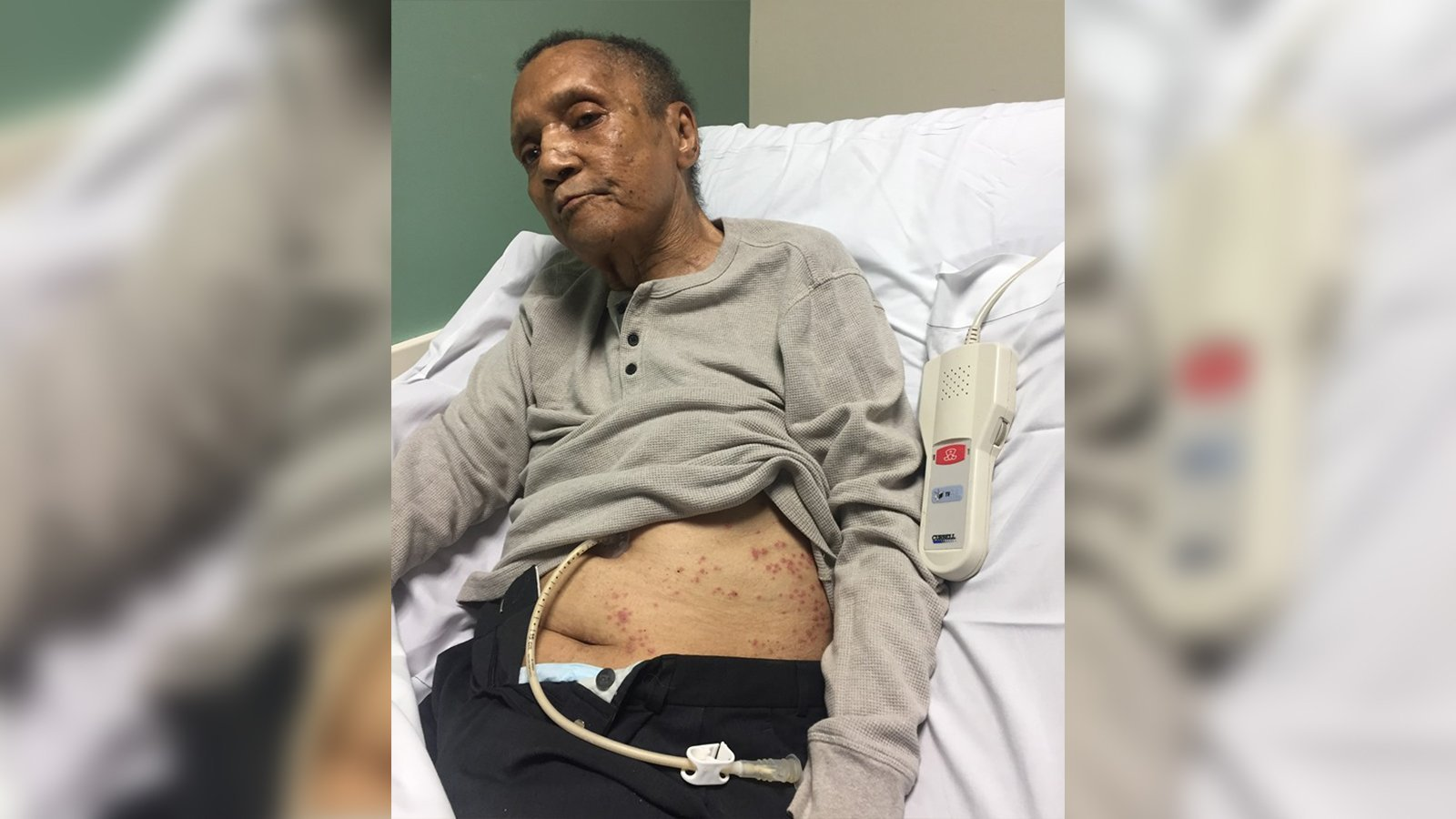 Air Force Veteran Covered in Ant Bites in His Final Days at VA Center, Says Daughter