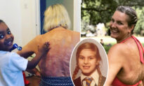Burn Victim Starts Body-positive Campaign After 47 Years of Shame: 'My Scars Are Wonderful'