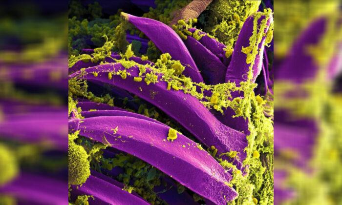 Image of plague bacteria Yersinia pestis. (National Institute of Allergy Infectious Diseases)
