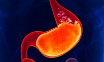 Top 5 Reasons Never to Take a Proton Pump Inhibitor