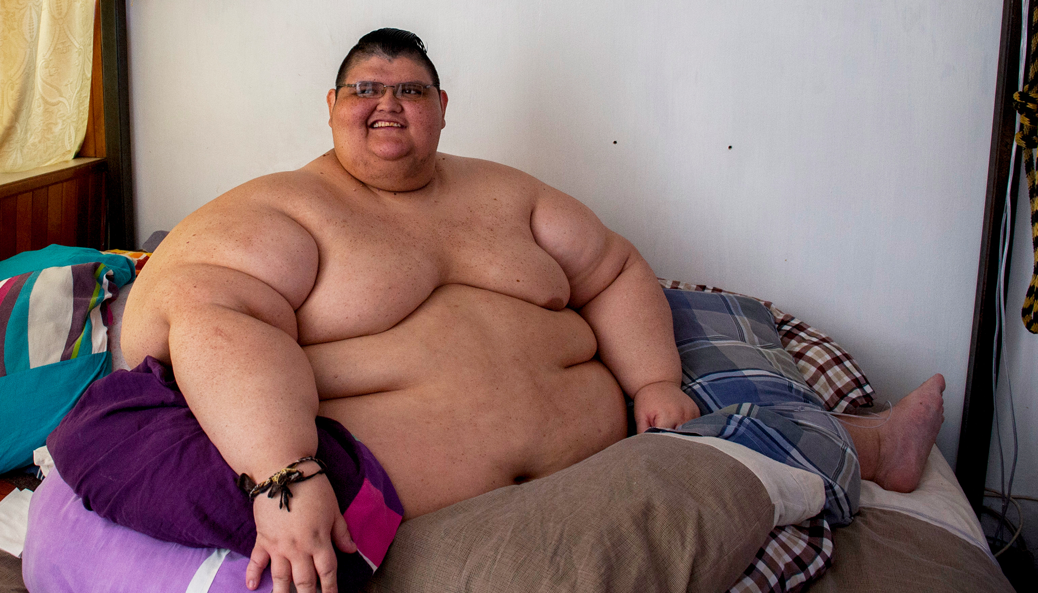 World S Fattest Man Loses 728 Pounds Leaves Bed Walks On Own 2 Feet For The First Time In 10 Years