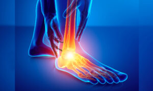 7 Different Types of Foot Pain and What They Could Be Telling You About Your Health