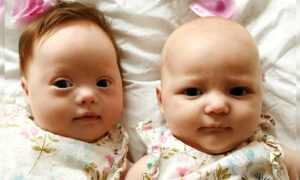 'One-in-a-Million' Twins: One Born With Down Syndrome, and the Other Without