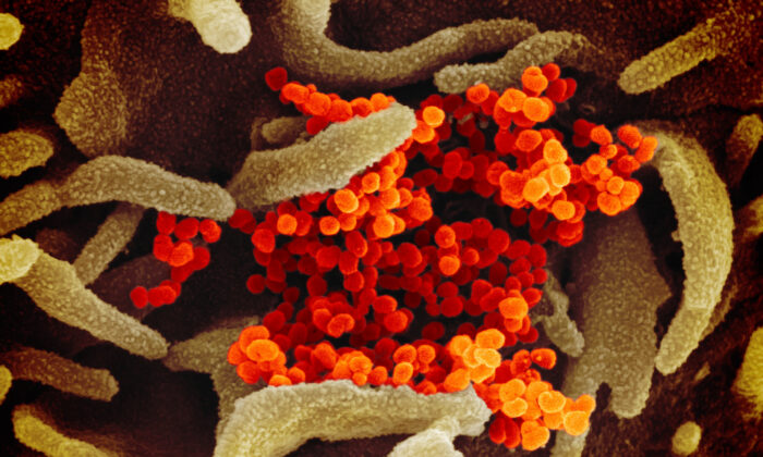 A scanning electron microscope image with the CCP virus (orange) isolated from a patient in the United States, emerging from the surface of cells (green) cultured in a lab. (NIAID-RML/CC BY 2.0)