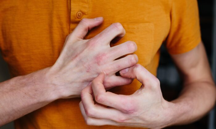 Autoimmune conditions can range from rashes to debilitating illness. (Ternavskaia Olga Alibec/Shutterstock)